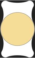 monofokale Intraokularlinse (IOL) - Standardlinse
